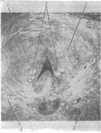 Рис. 1. Предстательная железа: 1 — краниальная часть; 2 — первичные элементы аденомы предстательной железы; 3 — каудальная часть предстательной железы.