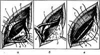 Рис. 10. Схема пластики пахового канала по Бассини: а — проведение швов через мышцы и паховую связку под семенным канатиком; б — создание задней стенки пахового канала; в — сшивание апоневроза наружной косой мышцы; 1 — внутренняя косая мышца; 2 — апоневроз наружной косой мышцы; 3 — паховая связка; 4 — семенной канатик.