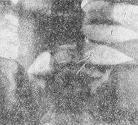 Рис. 11. Прямая рентгенограмма брюшной полости при завороте тонкой кишки: в петлях тонкой кишки большое количество газа (1) и горизонтальные уровни жидкости (2).