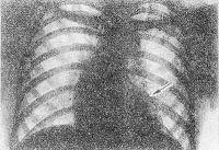 Рис. 4. Рентгенограмма грудной клетки при аортальном стенозе: тень сердца имеет форму башмака (аортальная конфигурация) с увеличенным левым желудочком (указан стрелкой), верхушка закруглена, (гипертрофия левого желудочка).