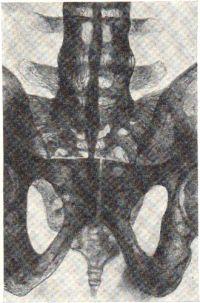 Рис. 6. Болезнь Бехтерева, III стадия. Окостенение всех связок позвоночника. Анкилоз крестцово-подвздошных сочленений. Окостенение межпозвонковых дисков. Щель лобкового сочленении сужена.