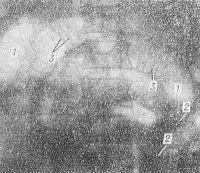 Рис. 8. Прямая рентгенограмма брюшной полости при тонкокишечной непроходимости: на фоне раздутых газом петель тонкой кишки (1) с уровнями жидкости в них (2) видна поперечная исчерченность (3), придающая петлям вид пружины.