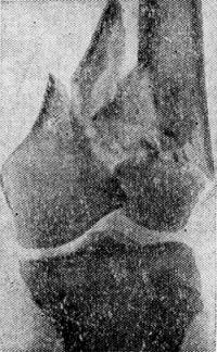 Рис. 6. Рентгенограмма коленного сустава при огнестрельном ранении с раздроблением бедренной кости.