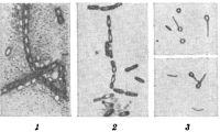 Рис. 2. Расположение спор (просветленные участки) у некоторых видов бактерий: 1 — Вас. anthracis; 2 — Cl. sporogenes; 3 — Cl. tetani.