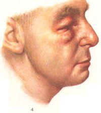 """рис. 4. Некоторые клинические проявления дерматомиозита — параорбитальная эритема и отек (симптом """"очков""""), одутловатость лица, синюшно - розовая окраска кожи и губ;"""