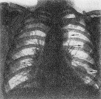Рис. 6. Рентгенограмма грудной клетки при ревматоидном артрите (прямая проекция): стрелками указаны ревматоидные узлы в легких.