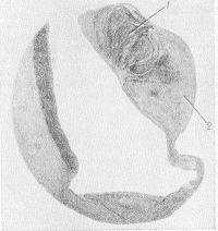 Рис. 5. Микропрепарат сердца при ревматическом стенозе устья аорты: склероз и утолщение дистальной части заслонки (1) с гиперпластическим разрастанием слоистой фиброзно-эластической ткани (2), окраска на эластин; х 3.