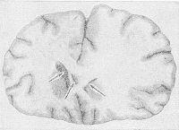 Фронтальный разрез полушарий головного мозга при его отеке: увеличение объема левого полушария, стертость границ между белым и серым веществом, спадение боковых желудочков, более выраженное на стороне набухания (указано стрелками).