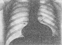 Рис. 14. Рентгенограмма грудной клетки при общем артериальном стволе (прямая проекция): по левому контуру сердца западение дуги легочного ствола; правый контур сосудистого пучка и атриовазальный угол смещены вниз (изменения указаны стрелками).