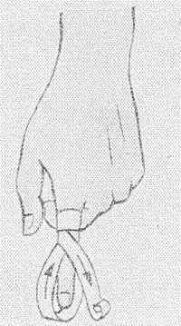 Рис. 31. Наложение возвращающейся повязки пальца.