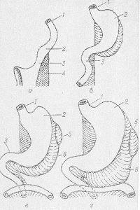 Рис. 1. Схематическое изображение развития желудка (по Пэттену): а — положение желудка на 4-й неделе развития; б, в и г — последующие стадии развития желудка до 4-х месяцев; 1 — пищевод; 2 — желудок; 3 — двенадцатиперстная кишка; 4 — дорсальная брыжейка; 5 — зачаток селезенки; 6 — большой сальник.
