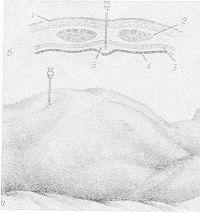 Рис. 8. Параперитонеальная блокада по Дудкевичу: а — игла введена в предбрюшинную клетчатку; б — положение иглы и распространение раствора новокаина в предбрюшинной клетчатке на поперечном разрезе передней брюшной стенки (1 — кожа и подкожная клетчатка, 2 — прямая мышца живота, 3 — поперечная фасция живота, 4 — брюшина, 5 — предбрюшинная клетчатка).