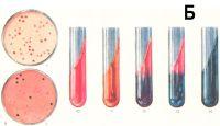 Рис. 9 — 14. Лабораторная диагностика на дифференциально-диагностических средах: рис. 9 — рост шигелл Зонне (светлые колонии) на чашках Петри (а — на среде Плоскирева, б—на среде Левина); рис. 10—14 —среда агар с лактозой, глюкозой и мочевиной, индикатор — смесь голубого водного красителя с розоловой кислотой: рис. 10 — среда без посева — дается для сравнения; рис. 11—расщепление мочевины при росте Bact. proteus (среда приобретает красновато-оранжевый оттенок); рис. 12—расщепление глюкозы до кислоты (столбик среды синеет) — подозрение на рост возбудителя дизентерии; рис. 13 — расщепление глюкозы до кислоты и газа — рост Bact. coli; рис. 14 — расщепление лактозы и глюкозы (среда синеет) —рост бактерий, подозрительных на возбудителя дизентерии (шигеллы Зонне).