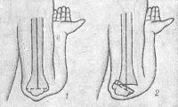 Рис. 6. Схема отношения оси плеча (сплошная линия) и линии надмыщелков (пунктир) в локтевом суставе при сгибании: 1 — в норме; 2 — при надмыщелковом переломе плечевой кости со смещением отломков.