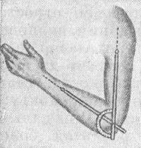 Рис. 7. Схематическое изображение измерения угла сгибания и разгибания верхней конечности в локтевом суставе с помощью угломера.
