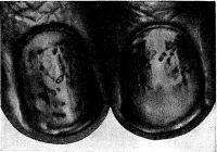 Ногти больного псориазом: характерное точечное поражение ногтевых пластинок в виде наперстка.