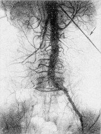Рис. 14. Транслюмбальная аортограмма при окклюзии правых общей наружной и внутренней подвздошных артерий (стрелкой указана пункционная игла).