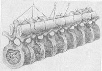 Рис. 4. Схематическое изображение укладки и фиксации костных трансплантатов при переломе позвоночника: 1 — остистые отростки позвонков, 2 — костные трансплантаты, уложенные на скелетированные дужки позвонков с обеих сторон от остистых отростков, 3 — шелковые швы.