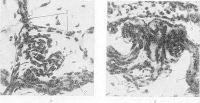 Рис. 19. Микропрепарат ткани легкого при узелковом периартериите (выражены функционально-приспособительные изменения в микрососудах париетальной плевры): а — образование резко развитого прекапилляра, б — образование сосудистого клубочка по ходу артериолы; 1 — резко извитой прекапилляр; 2 — артериола; 3 — капилляры; 4 — сосудистый клубочек; 5 — венула. Импрегнация серебром по методу Куприянова; х 320.