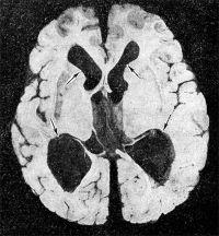 Рис. 19. Макропрепарат (горизонтальный срез) головного мозга больного с окклюзионной водянкой желудочков при астроцитоме мозжечка: стрелками указаны резко расширенные желудочки мозга.