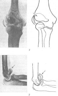 Рис. 16. Рентгенограммы (справа — их схемы) локтевого сустава при переломе и смещении латерального мыщелка плечевой кости (указано стрелкой): 1 — прямая проекция, 2 — боковая проекция.