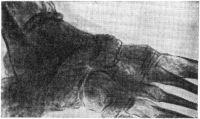 Рис. 15. Грибковый артрит. Стопа больного актиномикозом. Очаговый остеопороз (участки просветления) и умеренный остеосклероз (рентгенограмма).