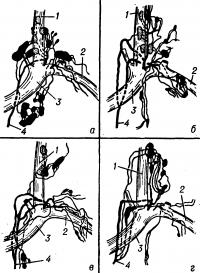 Рис. 2. Схема некоторых вариантов изменчивости шейной части грудного протока: а — один ствол; б — два ствола; в — три ствола; г — четыре ствола; 1 — у. jugularis int.; 2 — v. subclavia sin.; 3 — v. brachiocephalica sin.; 4 — ductus thoracicus.