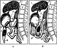 Рис. 1. Схема гастроэнтеростомии: а — задней (позадиободочной); б — передней (впередиободочной); 1 — печень; 2 — позвоночник; 3 — поджелудочная железа; 4 — желудок; 5 — гастроэнтероанастомоз; 6— брыжейка поперечной ободочной кишки; 7 — поперечная ободочная кишка; 8 — большой сальник; 9 — межкишечный анастомоз.