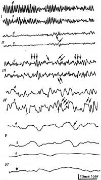Рис. 3. Электроэнцефалограммы больных с гипоксией головного мозга (многоканальная запись)