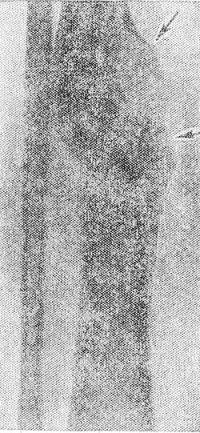Рис. 17. Рентгенограмма костей голени больного хроническим огнестрельным остеомиелитом большеберцовой кости: концы отломков приобрели закругленную форму, имеются массивные периостальные наслоения (указаны стрелками), диффузный остеосклероз отломков.