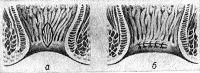 Рис. 13. Схематическое изображение промежностной части прямой кишки при коррекции врожденного стеноза