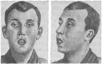 Типичное выражение лица при аденоидах.