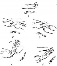 Рис. 4. Схематическое изображение вправления вывиха полулунной кости дистракционно-рычаговым способом (на схемах скелета полулунная кость заштрихована; стрелками показано направление движений при вправлении): 1 — вид кисти при вывихе полулунной кости (сглаженность контуров кистевого сустава, увеличение его окружности, согнутое положение пальцев); 2 — растяжение кистевого сустава по длине при супинированном предплечье и кисти; 3 — разгибание кисти при продолжающемся растяжении; 4 — вправление полулунной кости при одновременном сгибании и растяжении кисти; 5 — состояние после вправления вывиха.