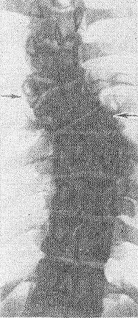 Рис. 11. Прямая рентгенограмма грудного отдела позвоночника: альтернирующие клиновидные полупозвонки (указаны стрелками).