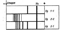 Рис. 1. Группы гаптоглобина (Нр) и характеризующие их электрофореграммы: каждая из групп гаптоглобина имеет специфическую электрофореграмму, отличающуюся расположением, интенсивностью и количеством полос; справа обозначены соответствующие группы гаптоглобина; знаком минус обозначен катод, знаком плюс — анод; стрелка у слова «старт» обозначает место введения исследуемой сыворотки в крахмальный гель (для определения ее группы гаптоглобина).