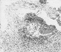 Рис. 18. Микропрепарат стенки тонкой кишки человека (Вегенера гранулематоз): 1 — фибриноидный некроз стенки артерии тонкой кишки; 2 — воспалительный инфильтрат из мононуклеаров с примесью полиморфноядерных лейкоцитов в участке деструкции стенки сосуда, распространяющийся на окружающую соединительную ткань. Окраска гематоксилин-эозином; х 100.