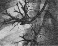 Рис. 3. Прицельная бронхография. Управляемый катетер введен в правый верхнедолевой бронх.