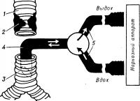 Рис. 5. Схематическое изображение системы шунт—дыхание, применяемой для вентиляции легких при открытых операциях на трахее: 1 — краниальный отрезок трахеи; 2 — область поражения трахеи; 3 — каудальный отрезок трахеи; 4 — интубационная трубка, установленная над бифуркацией трахеи; 5 — трубки, идущие от наркозного аппарата; стрелками указано направление движения дыхательной смеси.