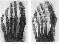Рис. 7. Рентгенограммы дистальных отделов стоп в норме (а) и при 3-й (по схеме Стайнброккера) стадии ревматоидного артрита (б): в отличие от нормы на рис. б отмечаются околосуставной остеопороз и кистовидные разрежения костной ткани (1), суставные щели плюснефаланговых суставов сужены (2), видны краевые эрозии костей преимущественно в области IV—V плюснефаланговых суставов (3).