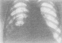 Рис. 6. Рентгенограмма грудной клетки при эхинококкозе правого легкого (прямая проекция): нижние отделы правого легкого затемнены, в области средней доли определяется кольцевидная тень с уровнем жидкости (указан стрелкой), обусловленная эхинококковой кистой, прорвавшейся в бронх; левое легочное поле без изменений.