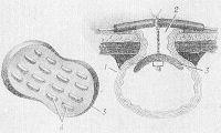 Рис. 11. Схематическое изображение некоторых вариантов уменьшения функционирования губовидного свища. Закрытие свища резиновой заслонкой-обтуратором: 1 — кишка (поперечное сечение); 2 — свищ; 3— резиновая заслонка (слева — крупным планом), прошитая для упругости тонкой алюминиевой проволокой (4).