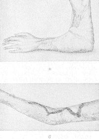 Рис. 10. Левая рука больного с рубцовой контрактурой III степени в локтевом суставе: а — до операции (видна рубцовая перепонка, ограничивающая разгибание предплечья до 90°); б — через 2 недели после пластики двупарными симметричными треугольными лоскутами кожи; достигнуто полное разгибание предплечья (линией указаны границы перемещения лоскутов).