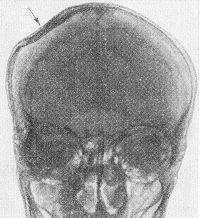 Рис. 2. Краниограмма при вдавленном переломе костей черепа (переднезадняя проекция): стрелкой указано вдавление в полость черепа правой теменной кости, при котором не нарушилась ее связь с соседними костями.