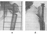 Рис. 6. Подвертельный перелом бедра: а — до лечения (видна шина Крамера); б — после фиксации штифтом-штопором Сиваша (рентгенограммы).