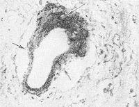 Рис. 3. Микропрепарат ткани головного мозга с аневризматическим расширением мелкой артерии (стрелками указана микроаневризма); окраска гематоксилин-эозином; х 200.