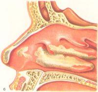 Рис. 6. Дифтерия полости носа (гиперемия слизистой оболочки и пленчатые налеты на ней).