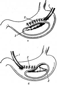 Рис. 1. Схема гастростомии по Витцелю