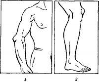 Рис. 1. Бурсит в области локтевого (1) и коленного (2) суставов.