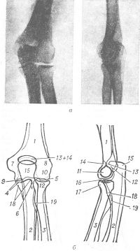 Рис. 2. Рентгенограммы локтевого сустава (а) и схемы к ним (б): слева — прямая проекция, справа — боковая: 1 — диафиз плечевой ности; 2 — диафиз локтевой кости; 3 — диафиз лучевой кости; 4 — рентгеновская суставная щель плечелоктевого сочленения; 5 — рентгеновская суставная щель плечелучевого сочленения; 6 — рентгеновская суставная щель проксимального лучелоктевого сочленения; 7 — медиальный надмыщелок; 8 — латеральный надмыщелок; 9 — внутренний вал блока; 10 — головка мыщелка плечевой кости; 11 — блок; 12 — слева, на схеме головка лучевой кости, справа — полулунная вырезка; 13 — ямка для локтевого отростка; 14 — ямка для венечного отростка; 15 — локтевой отросток; 16 — венечный отросток локтевой кости; 17 — головка лучевой кости; 18 — шейка лучевой кости; 19 — бугристость лучевой кости.