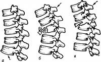 Рис. 19. Схематическое изображение типичных (сгибательных) переломов позвонков: а — компрессионный перелом I степени с деформацией тела среднего (на рисунке) позвонка, б — многооскольчатый перелом тела позвонка, в — перелом тела и суставных отростков позвонка с подвывихом его — нестабильный переломовывих (стрелками показаны направления травмирующей силы).